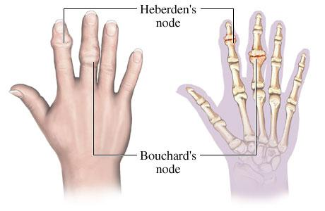 dip and pip joint arthritis hand orthobullets