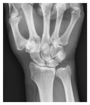 https://upload.orthobullets.com/topic/6056/images/stt arthritis.jpg