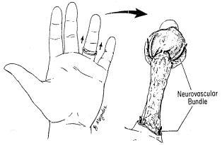 ring avulsion injuries hand orthobullets