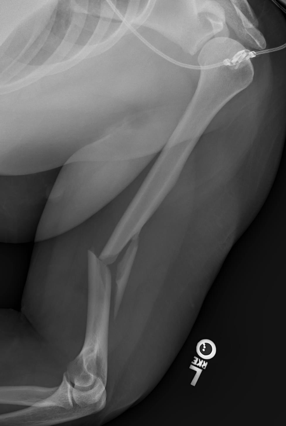 https://upload.orthobullets.com/topic/6066/images/humerus_fracture.jpg