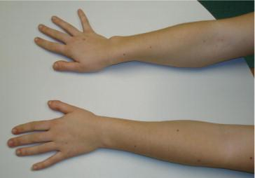 madelung s deformity hand orthobullets