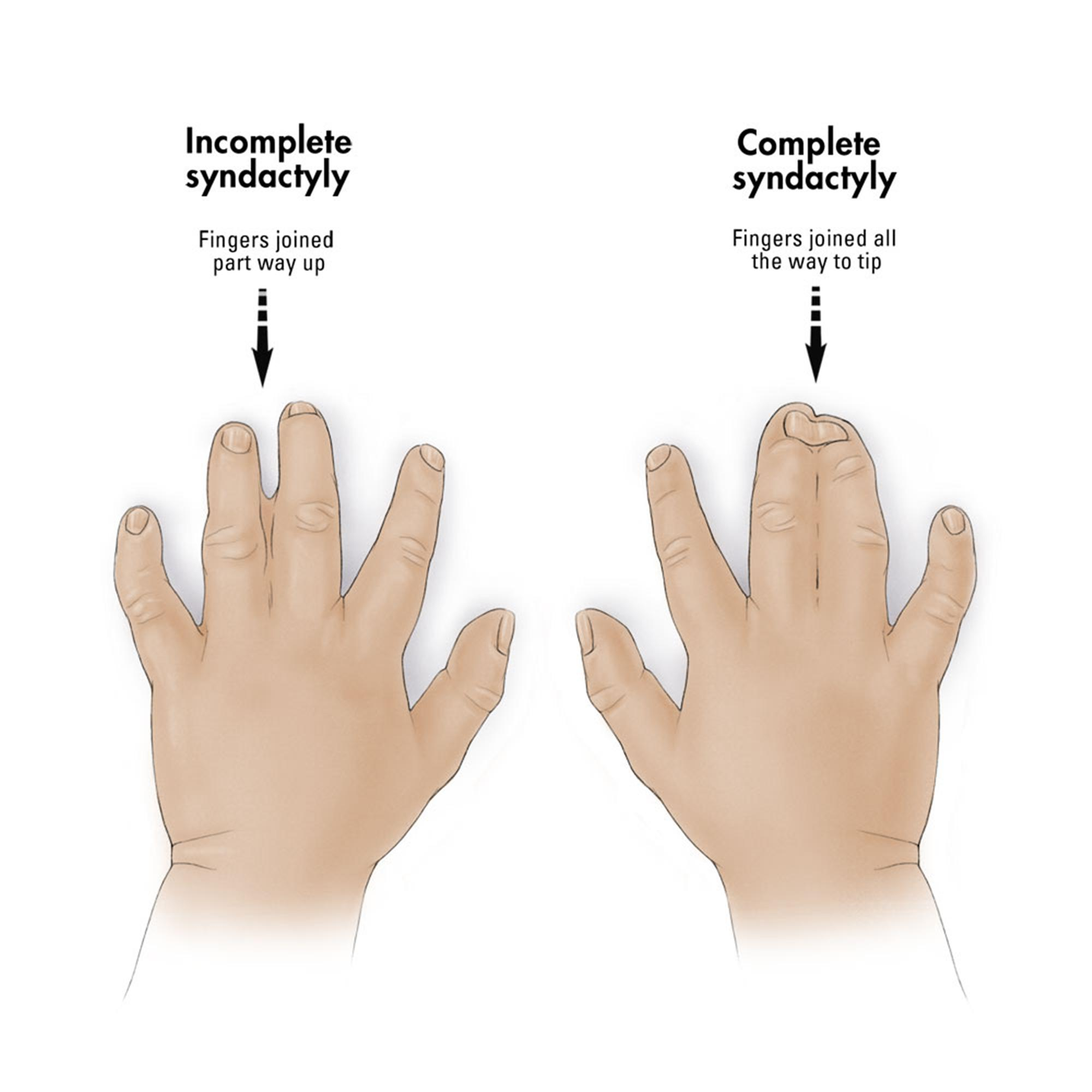 Syndactyly - Hand - Orthobullets