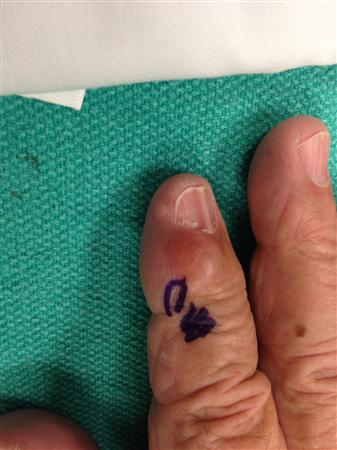 DIP and PIP Joint Arthritis - Hand - Orthobullets