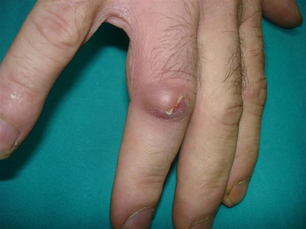 Cyst ulnar styloid thumb joint, monica bedi xxx