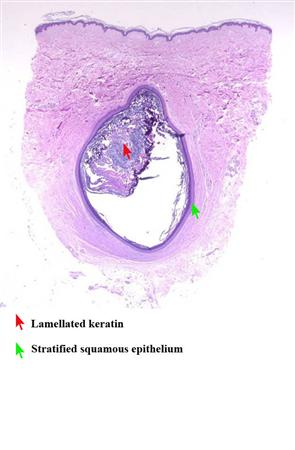Epidermal Inclusion Cyst - Hand - Orthobullets