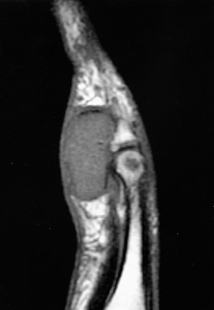 https://upload.orthobullets.com/topic/6092/images/gctts mri.jpg
