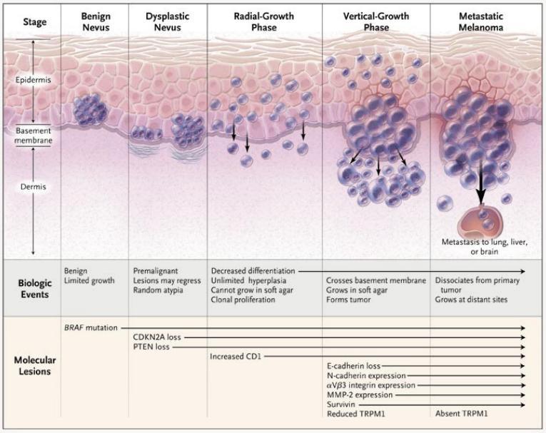 Melanoma - Pathology - Orthobullets