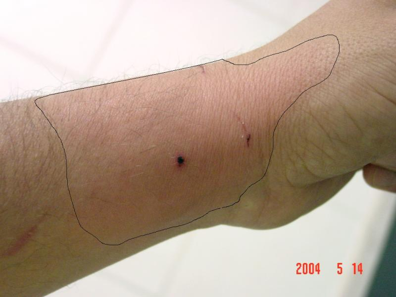 Dog and cat bites hand orthobullets for What does cat scratch fever look like