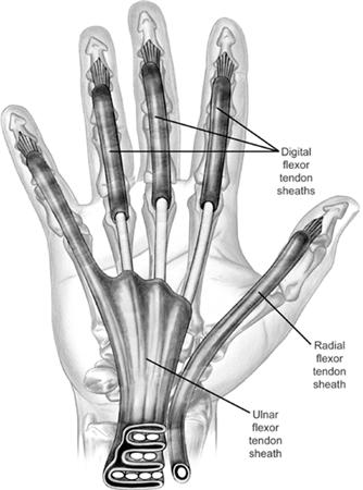 https://upload.orthobullets.com/topic/6105/images/w tendon sheaths.jpg
