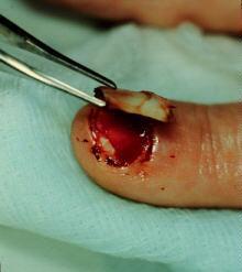 Nail Bed Injury - Hand - Orthobullets