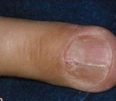 Nail Bed Injury Hand Orthobullets