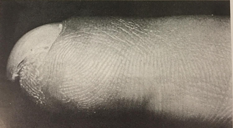 hook nail deformity hand orthobullets