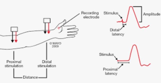 https://upload.orthobullets.com/topic/6113/images/7670c6ec-71bf-443b-9136-929e2bc13fc6_nerve_conduction_..jpg