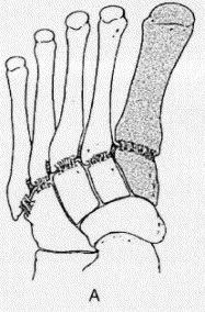 https://upload.orthobullets.com/topic/7006/images/medial column of foot_moved.jpg