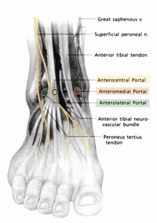 Ankle Arthroscopy Foot Ankle Orthobullets
