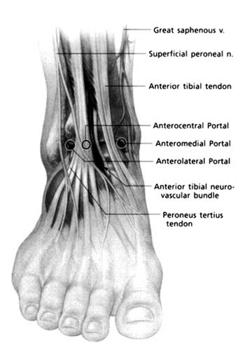 Ankle Arthroscopy - Foot & Ankle - Orthobullets