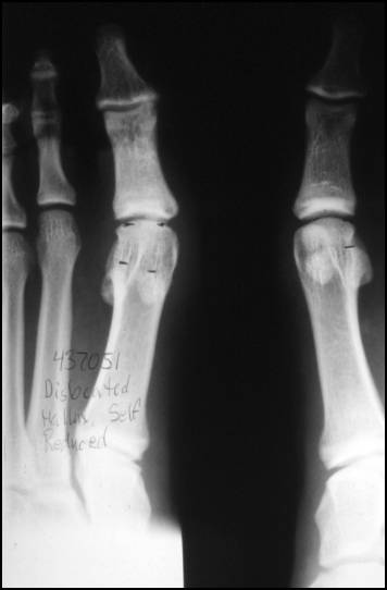 https://upload.orthobullets.com/topic/7010/images/Xray - courtesy of Richardson_moved.jpg