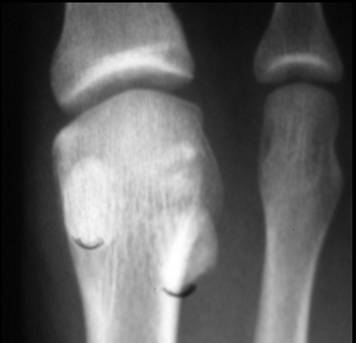 https://upload.orthobullets.com/topic/7015/images/Sesamoid fx_moved.jpg