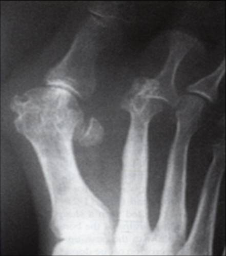 Synovitis Of 2nd Mtp Foot Ankle Orthobullets
