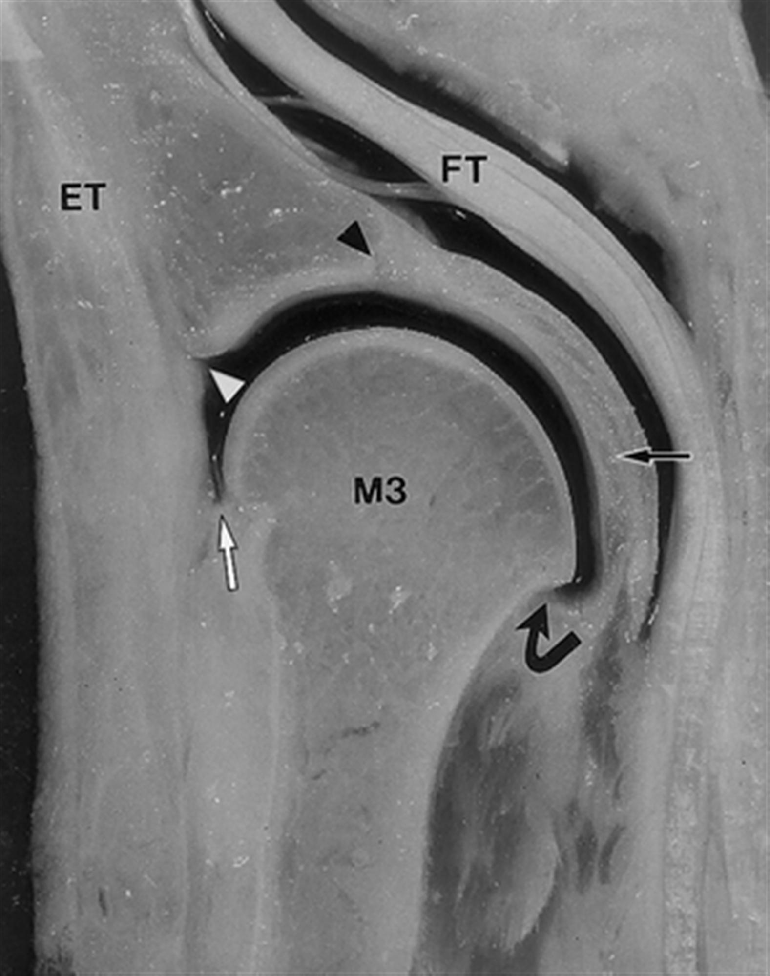 Synovitis of 2nd MTP - Foot & Ankle - Orthobullets