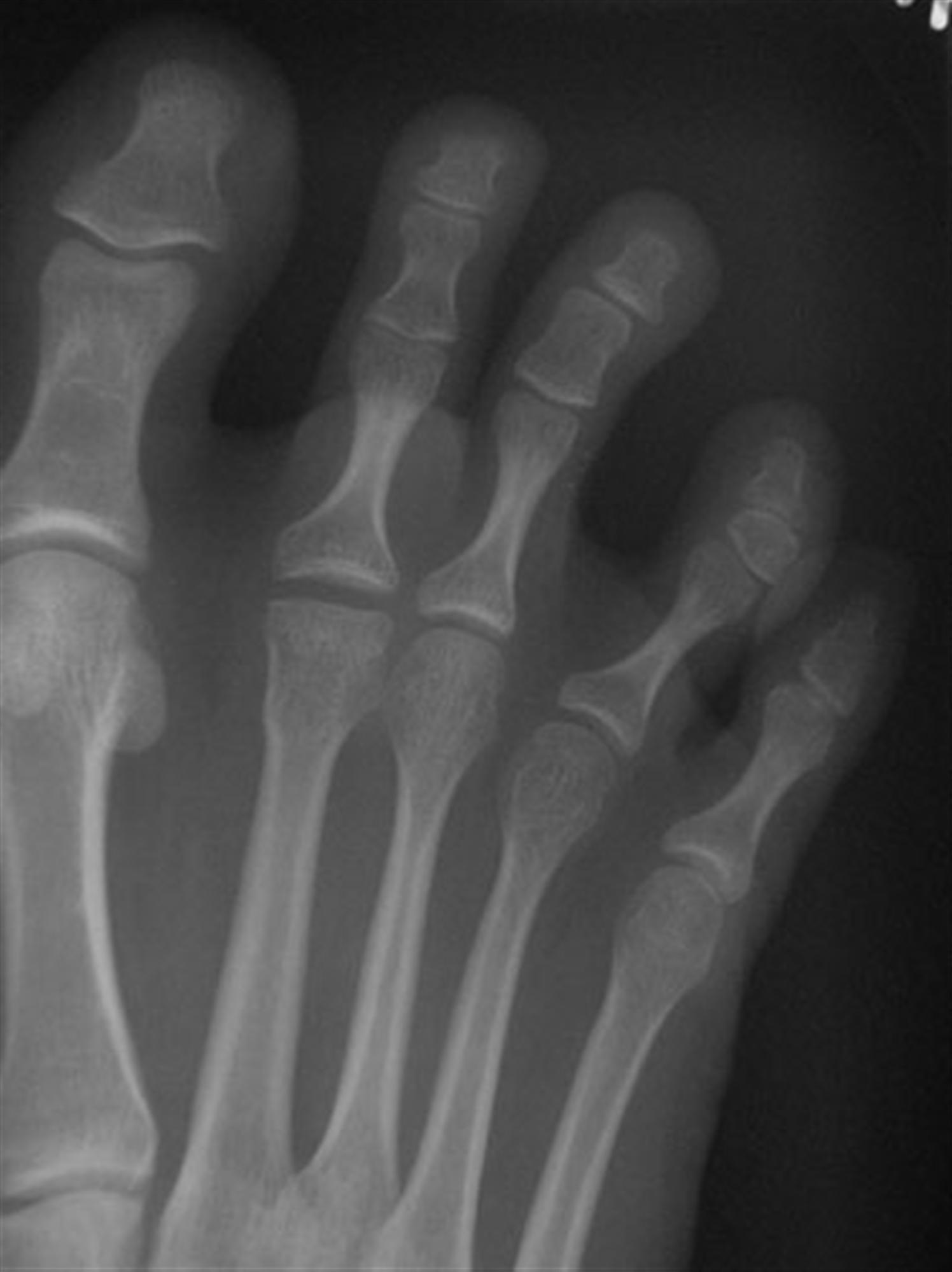 Freibergs Disease Foot Ankle Orthobullets