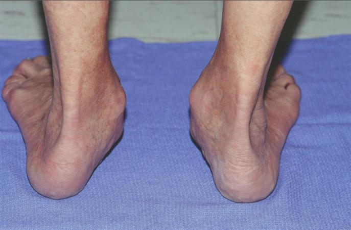 Posterior Tibial Tendon Insufficiency (PTTI) - Foot & Ankle ...
