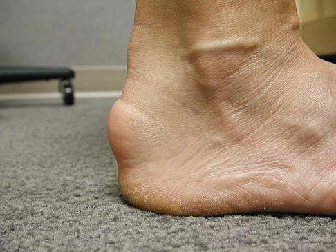 Achilles Tendonitis - Foot & Ankle - Orthobullets