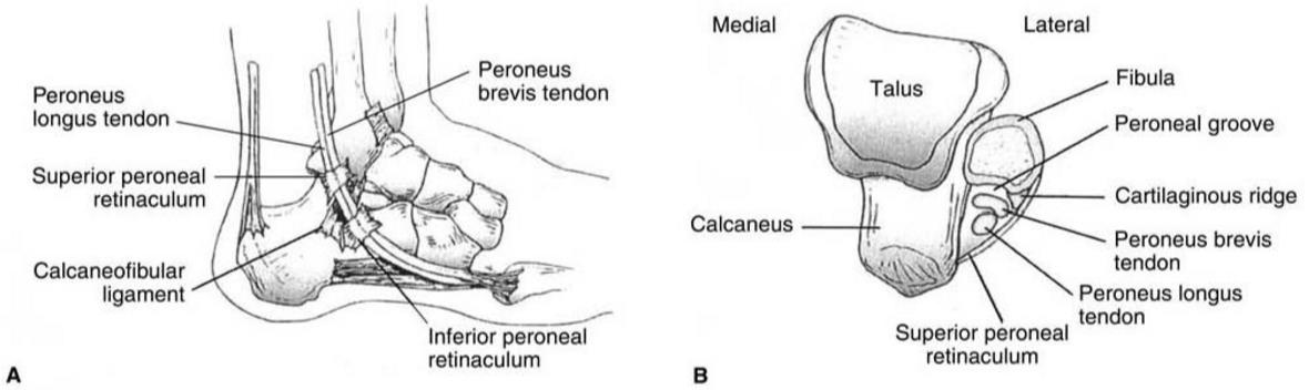 Peroneal Tendon Subluxation Dislocation Foot Ankle