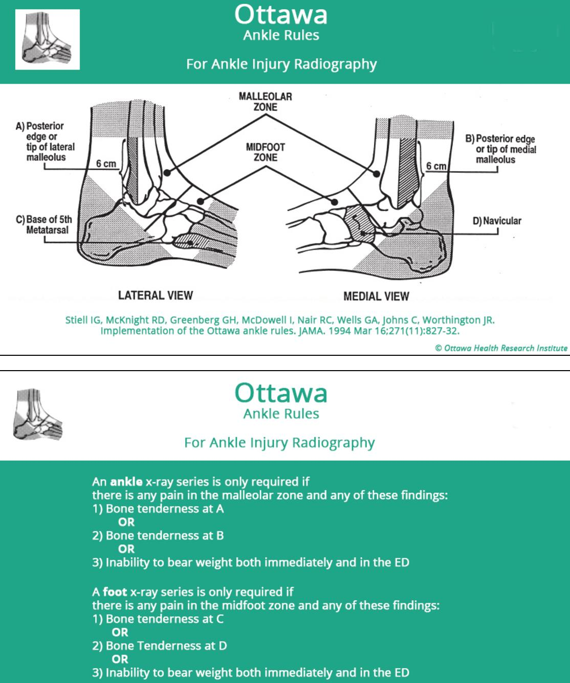 Low Ankle Sprain - Foot & Ankle - Orthobullets
