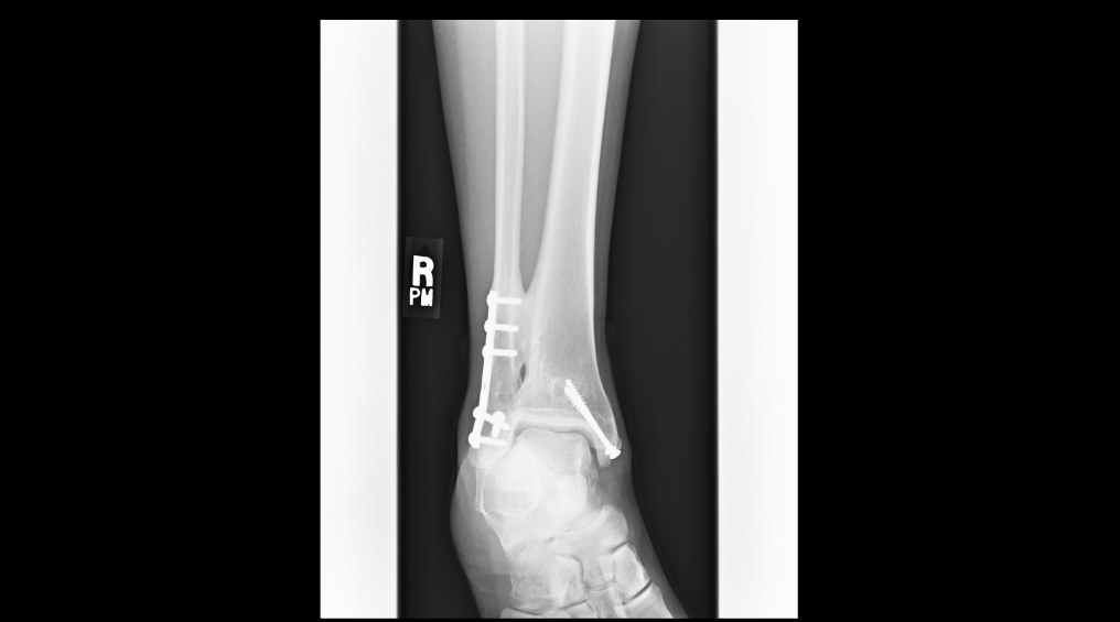High Ankle Sprain & Syndesmosis Injury - Foot & Ankle - Orthobullets