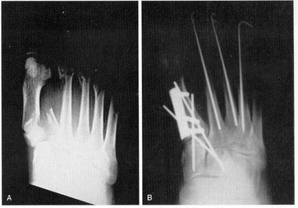 Metatarsal Fractures - Foot & Ankle - Orthobullets