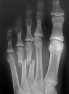 https://upload.orthobullets.com/topic/7032/images/metatarsal-fracture-222x300.jpg