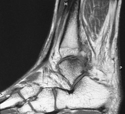 osteochondral impaction