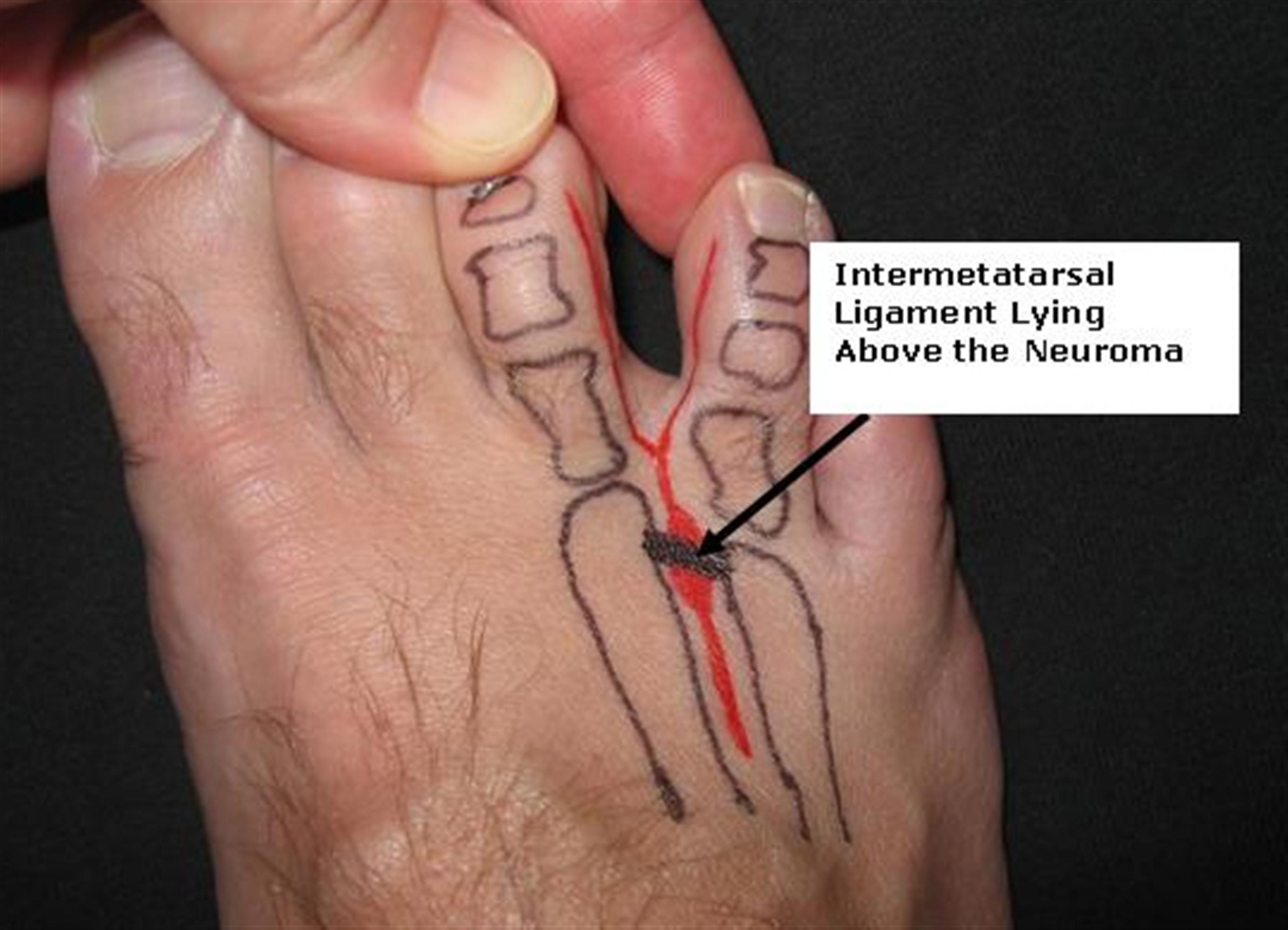Interdigital (Morton's) Neuroma - Foot & Ankle - Orthobullets