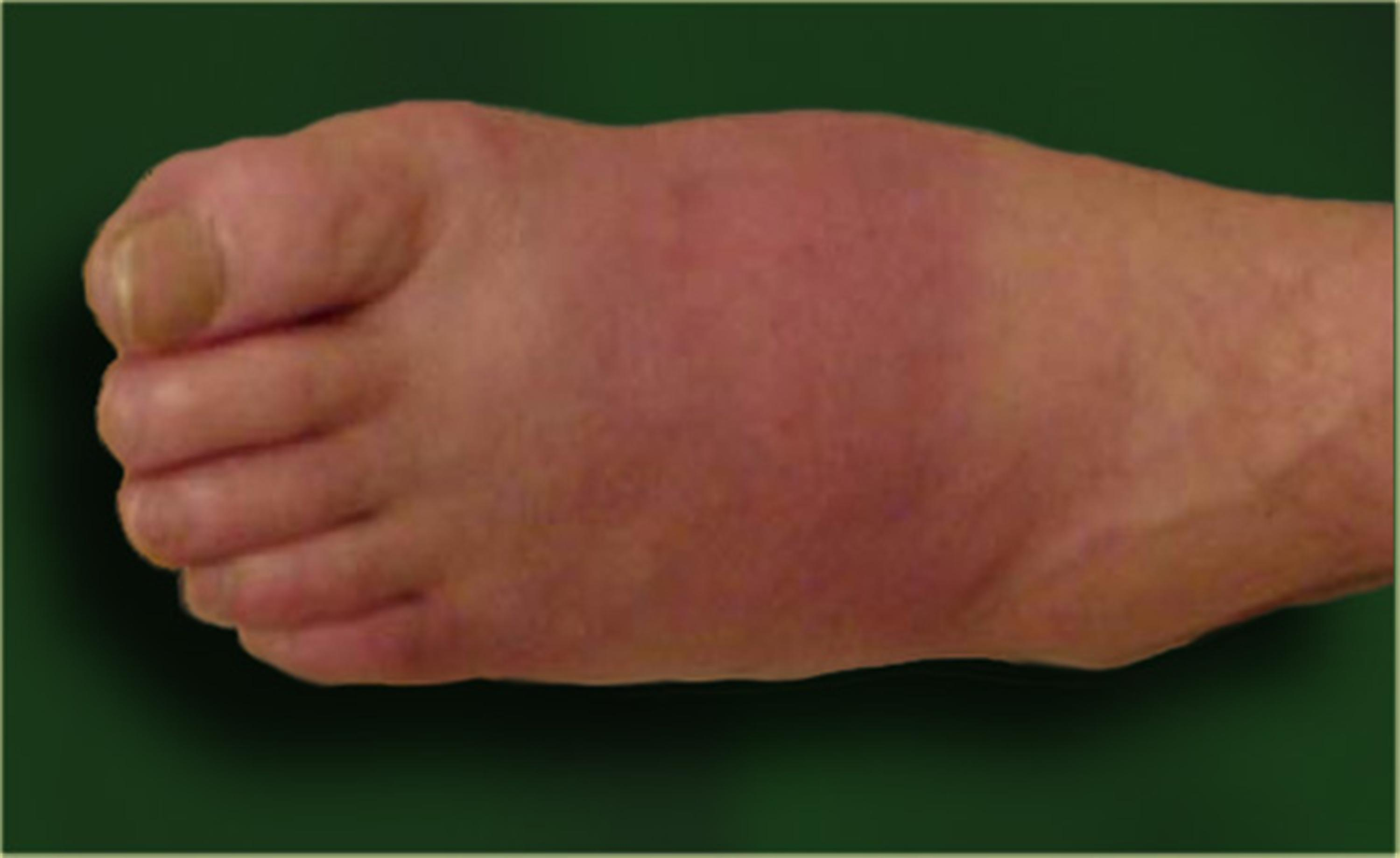 Diabetic Charcot Neuropathy Foot Ankle Orthobullets