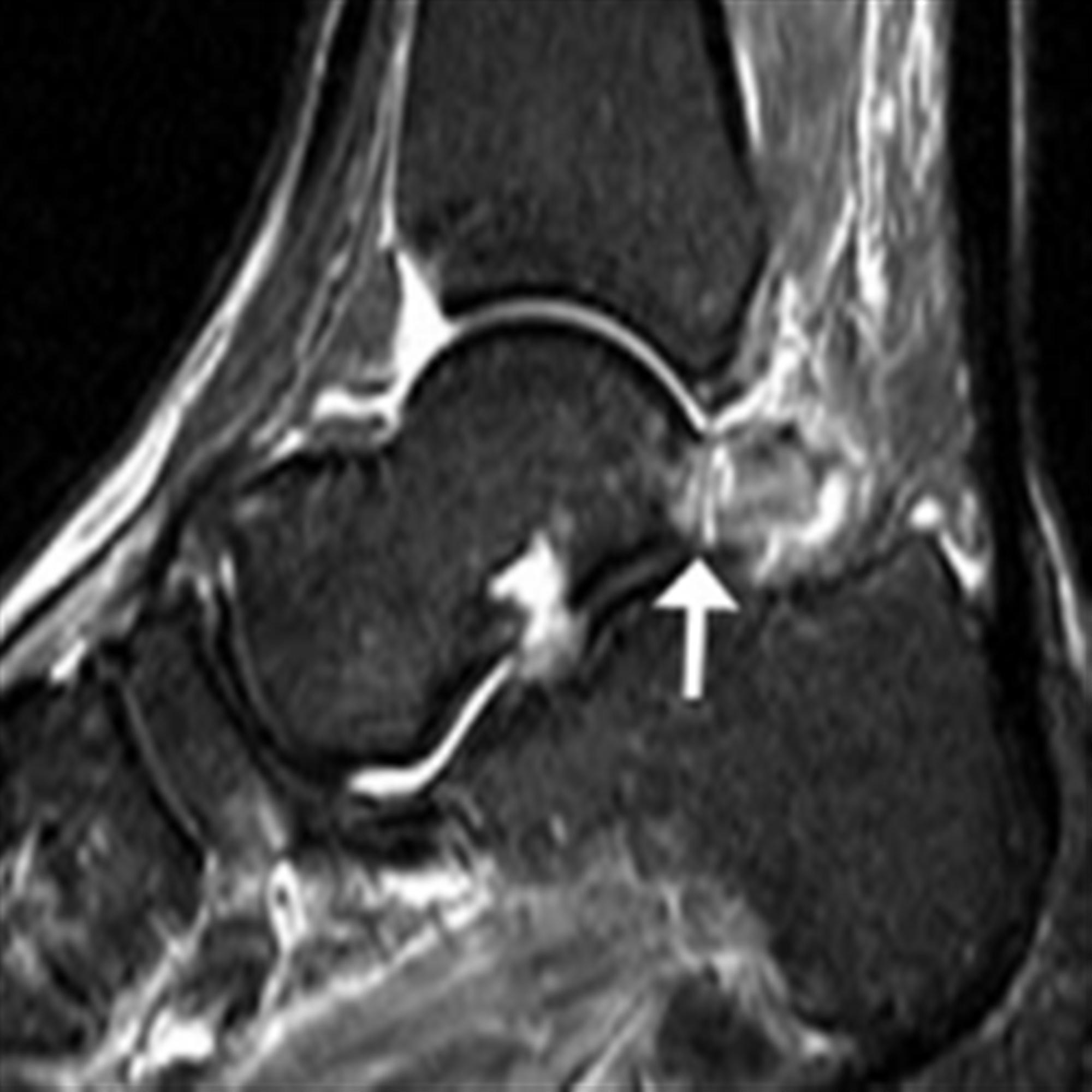 https://upload.orthobullets.com/topic/7049/images/os trigonum mri.jpg