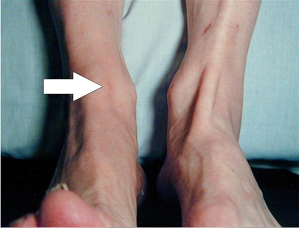 Anterior Tibialis Tendon Rupture Foot Ankle Orthobullets