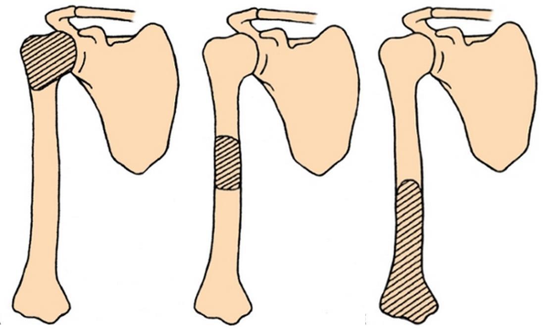 Kombucha in tratamentul artritei