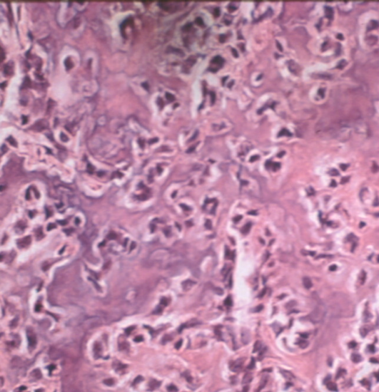 https://upload.orthobullets.com/topic/8013/images/Histology C - parsons_moved.png