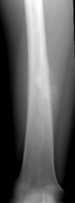 https://upload.orthobullets.com/topic/8014/images/Case E - femur shaft - xray ap - Parsons_moved.png