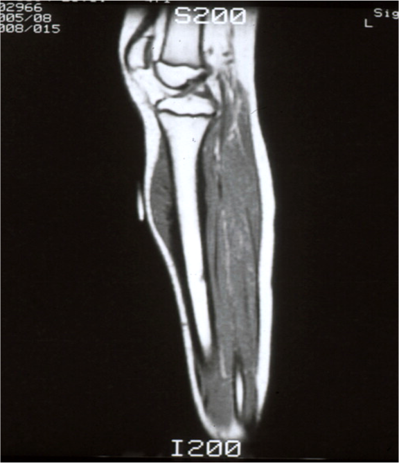https://upload.orthobullets.com/topic/8016/images/Case A - tibia - MRI - Parsons_moved.png