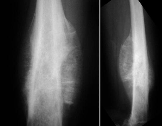 https://upload.orthobullets.com/topic/8016/images/osteosarcoma radiograph sunburst periosteal reaction.jpg