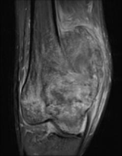 https://upload.orthobullets.com/topic/8017/images/Case C - distal femur - mri sag - Parsons_moved.jpg