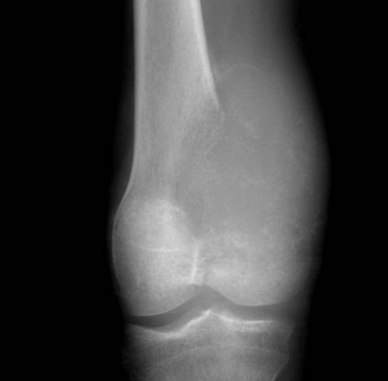 https://upload.orthobullets.com/topic/8017/images/Case C - distal femur - xray ap - Parsons_moved.jpg