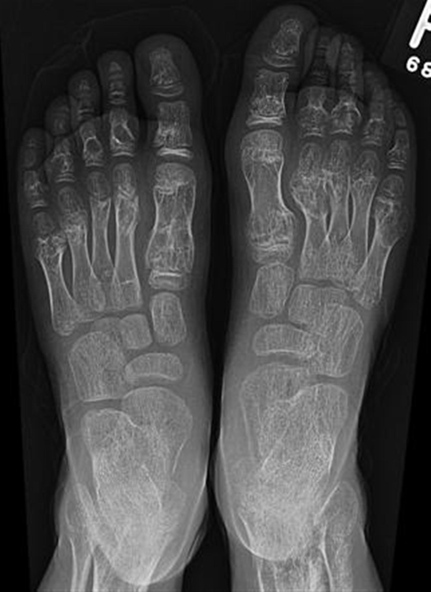 https://upload.orthobullets.com/topic/8018/images/ollier foot.jpg