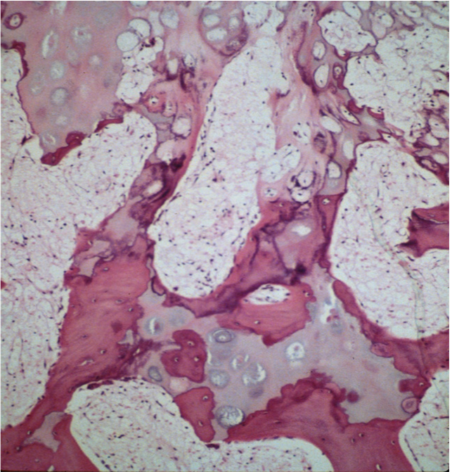 https://upload.orthobullets.com/topic/8020/images/Histology A - primary trabeculae - Parsons_moved.png