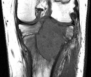 https://upload.orthobullets.com/topic/8021/images/Case G - femur - T2 MRI - Parsons_moved.png