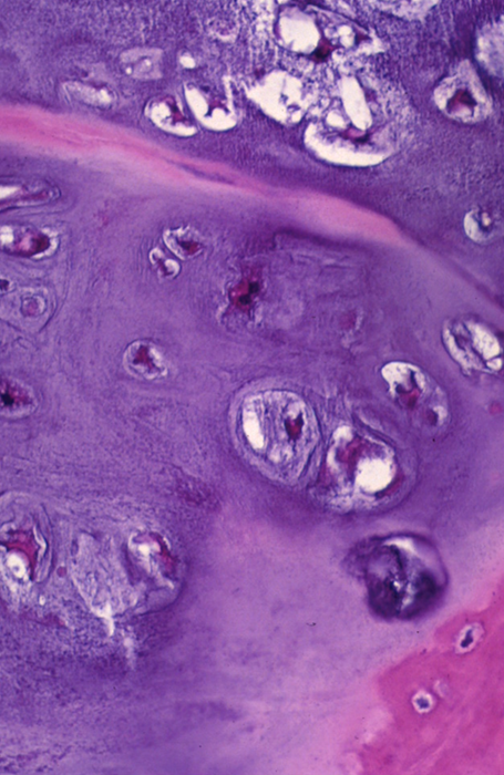 https://upload.orthobullets.com/topic/8021/images/Histology A_moved.png