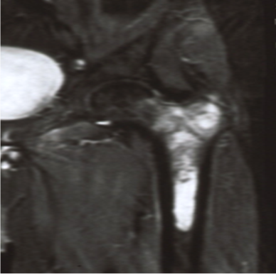 https://upload.orthobullets.com/topic/8023/images/Case E - prox femur - MRI - Parsons_moved.png