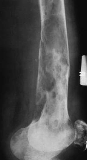 https://upload.orthobullets.com/topic/8025/images/Case A - femur - xray - Parsons_moved.jpg